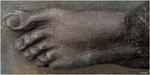 Eiserner Fuß